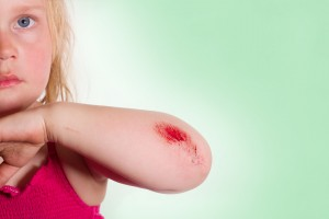 Hautverletzung am Ellenbogen