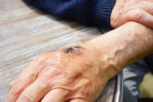 Hautverletzung an der Hand